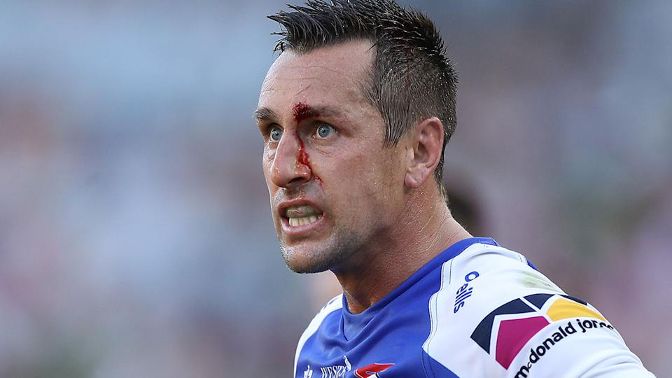 Seen here, Mitchell Pearce has blood dripping down his face during an NRL match for the Knights.