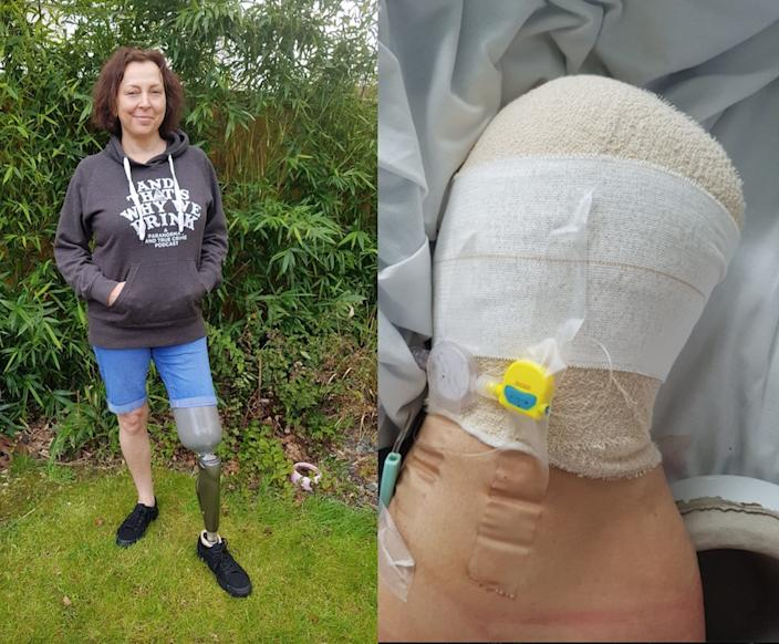 Helen Way had to have her leg amputated after suffering a freak accident in a supermarket car park. (Caters)