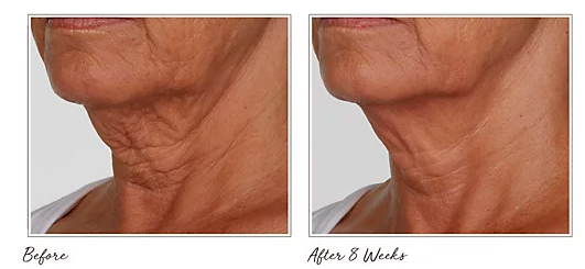 The before and after photos are impressive! (Photo: QVC)