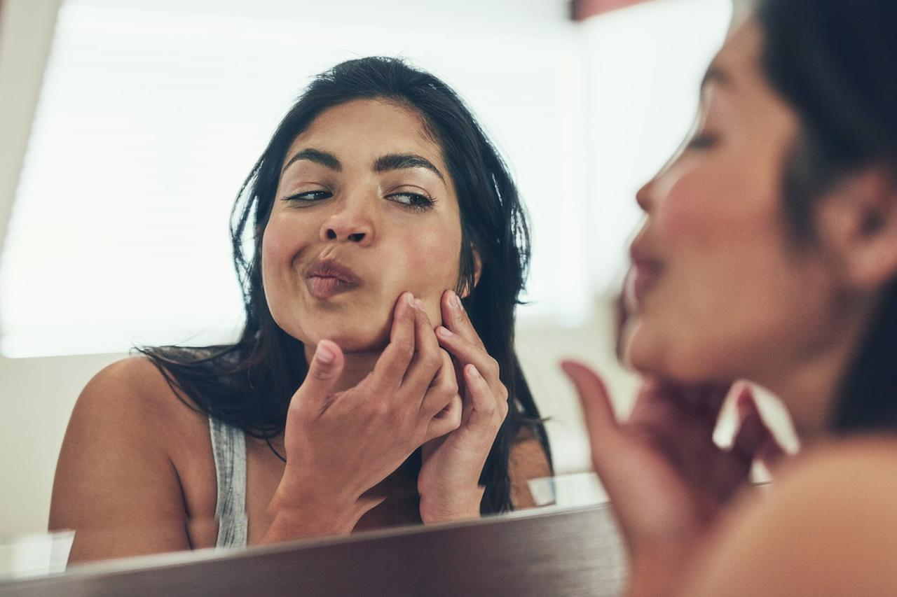 """<p>""""Acne treatment requires a multipronged approach,"""" <a href=""""https://www.feinberg.northwestern.edu/faculty-profiles/az/profile.html?xid=39481"""" target=""""_blank"""" class=""""ga-track"""" data-ga-category=""""Related"""" data-ga-label=""""https://www.feinberg.northwestern.edu/faculty-profiles/az/profile.html?xid=39481"""" data-ga-action=""""In-Line Links"""">Dr. Steve Xu</a>, MSc and assistant professor of dermatology at Northwestern University, told us. """"You have to fight the bacteria that drives acne. You have to fight the oil your skin naturally produces.""""</p> <p>Some of that oil is good, though! So before you run out and buy any random product, assess your skin type (you might actually be underhydrated, so your skin is compensating by producing more oil) and figure out what <em>type</em> of products you need.</p> <p>""""Over-the-counter products including gentle cleanser, benzoyl peroxide, and Differin shouldn't break the bank,"""" said <a href=""""https://westskinlaser.com/about/"""" target=""""_blank"""" class=""""ga-track"""" data-ga-category=""""Related"""" data-ga-label=""""https://westskinlaser.com/about/"""" data-ga-action=""""In-Line Links"""">Chelsea Heidenberger</a>, a medical esthetician working alongside Dr. West at the West Institute. """"Try these first, and don't give up after a week or two or because you get a little dryness or continued breaking out. It will take at least six to eight weeks to see results. No single acne treatment works for everyone, though, so if you're not getting anywhere after using this over-the-counter regimen, see your dermatologist, who may determine that you need prescription products.""""</p>"""