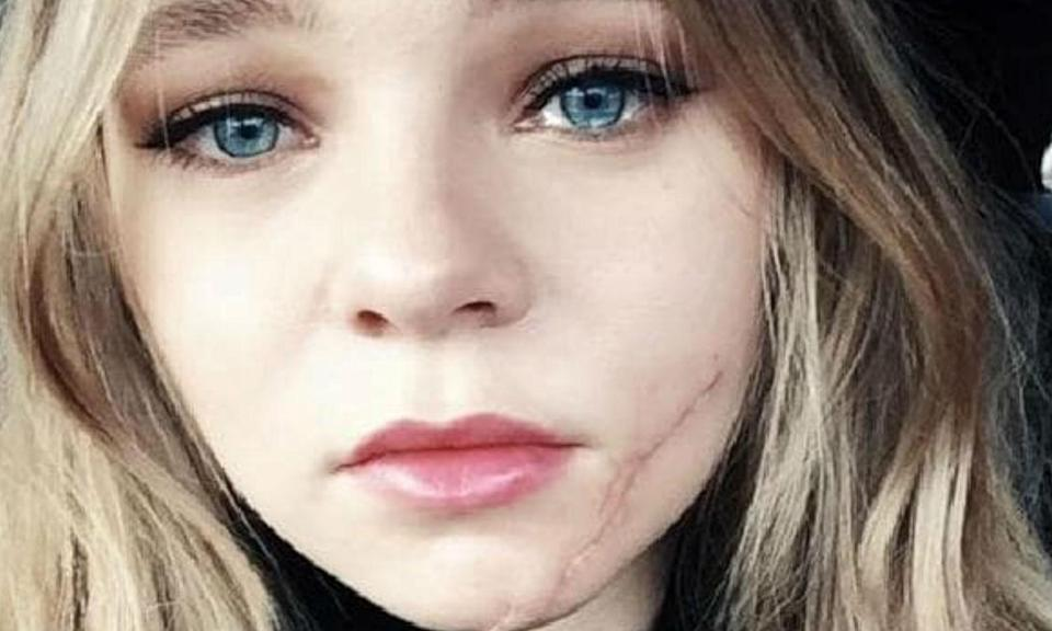 """<p>In December 2016, the actress <a href=""""https://uk.movies.yahoo.com/actress-taylor-hickson-sues-filmmakers-disfiguring-set-accident-095920474.html"""" data-ylk=""""slk:crashed through a glass door;outcm:mb_qualified_link;_E:mb_qualified_link;ct:story;"""" class=""""link rapid-noclick-resp yahoo-link"""">crashed through a glass door</a> she was urged by her director to repeatedly bang on, and ended up needing multiple reconstructive surgeries. She now has a permanent facial scar and is suing the film's producers. </p>"""