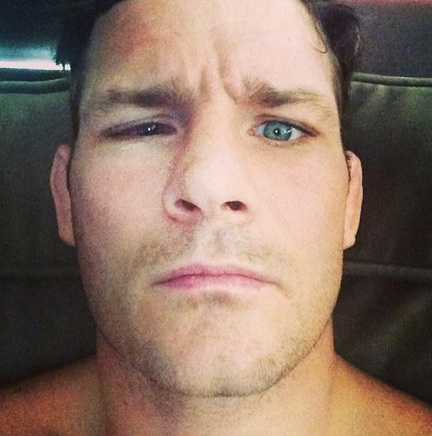 Michael Bisping Eye Exam Inconclusive; Tim Kennedy Bout in a Holding Pattern