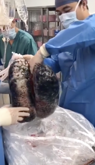 Doctors removed the blackened lungs of a man who chain smoked for 30 years.