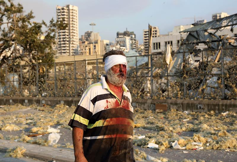 A wounded man walks near the scene of the explosion in Beirut. (Photo: ANWAR AMRO via Getty Images)