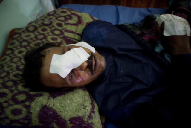 <p>Ahmed Ghoniem receives medical treatment at the Suez Canal University hospital in Ismailia, Egypt, Saturday, Nov. 25, 2017, a day after he was injured during an attack on a mosque. (Photo: Amr Nabil/AP) </p>