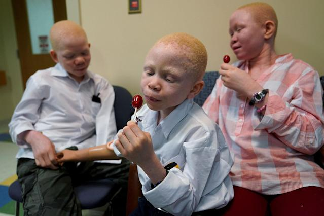<p>Mwigulu Magesaa (L), 14, Baraka Lusambo, (C), 7, and Pendo Noni 16, wait in the lobby during prosthetic arm fittings at the Shriners Hospital in Philadelphia, Pa., May 30, 2017. All three are Tanzanians with albinism who had body parts chopped off in witchcraft-driven attacks. (Photo: Carlo Allegri/Reuters) </p>