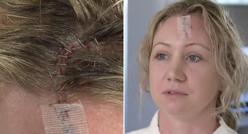 Bec Davies is pictured along with staples in her head after an injury.