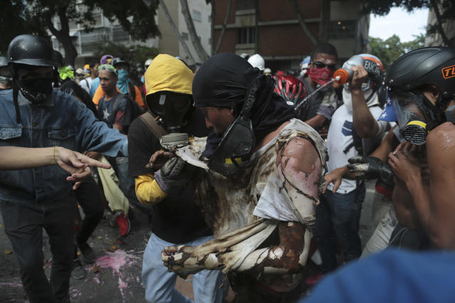 <p>A man is aided by fellow anti-government protesters after he was burnt when demonstrators set fire to a Bolivarian National Guard motorbike as security forces block their march from reaching the National Assembly in Caracas, Venezuela, Wednesday, May 3, 2017. (AP Photo/Fernando Llano) </p>