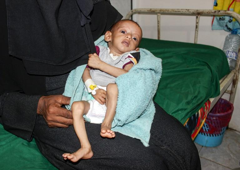 A malnourished child receiving treatment at a hospital in Yemen: a UN report said more than 821 million people worldwide suffered from hunger in 2018
