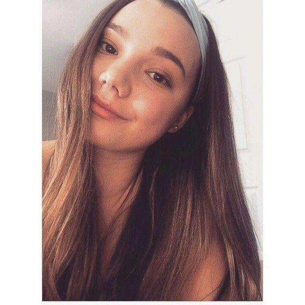 Stefanie Schaffer, 22, had both her legs amputated after the boat she was riding in exploded in the Bahamas on Saturday, June 30, 2018. Her mother was also seriously injured. (Schaffer Family)