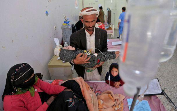 PHOTO: A Yemeni father carries his malnourished child at al-Sabeen Maternity and Child Hospital in the Huthi-rebel-held Yemeni capital Sanaa, on March 2, 2021. (Mohammed Huwais/AFP via Getty Images)