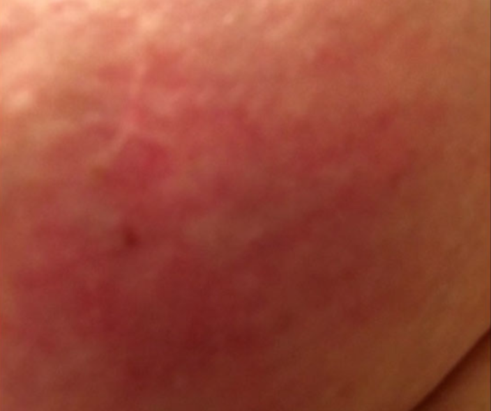 Why You Should Never Ignore A Red Patch On Your Chest