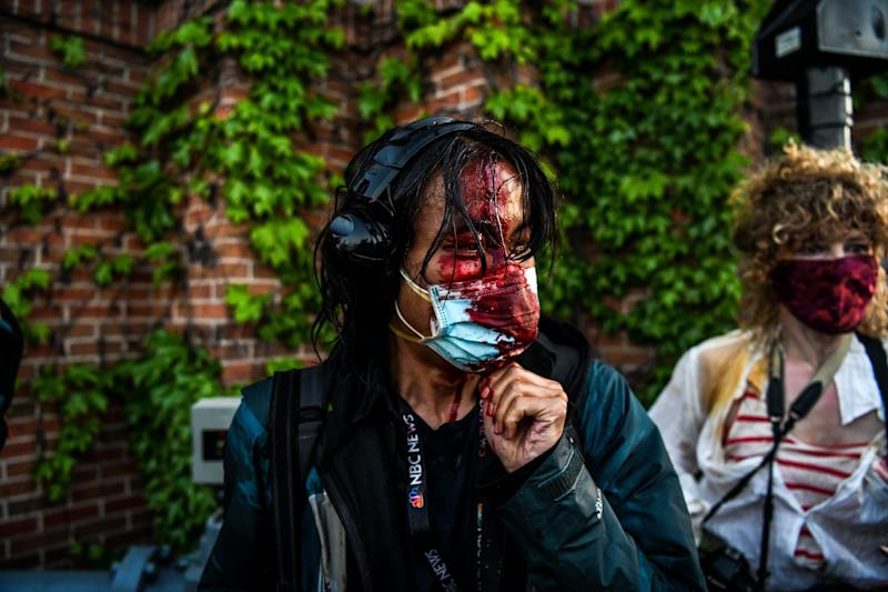 A journalist is seen bleeding after police started firing tear gas and rubber bullets near the 5th police precinct following a demonstration in Minneapolis on May 30, 2020.