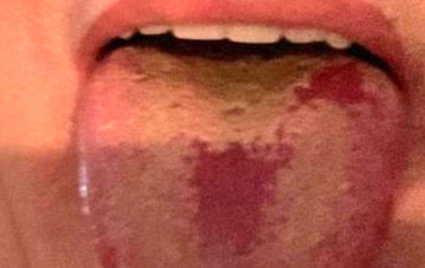 An example of Covid tongue shared by Prof Spector on Twitter. (Photo: Prof Tim Spector)