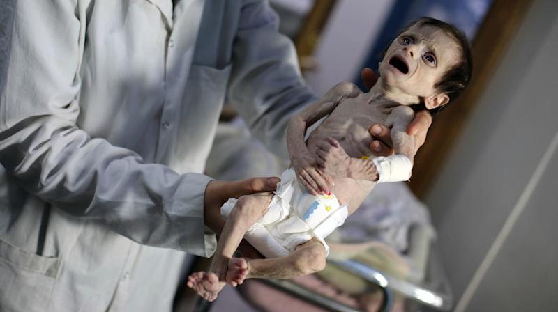 The Horrifying Death Of A Syrian Infant Underscores The Brutality Of Assad's Siege Warfare