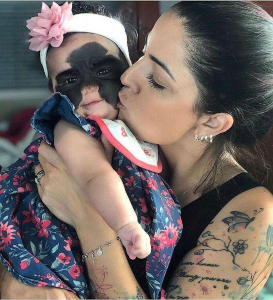 PHOTO: Luna Fenner was born with a congenital melanocytic nevus, which is a skin condition that shows a large marking on her face. (Carolina Fenner)