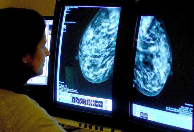 <p>The UK went into Covid-19 with cancer services that needed improvement and now has a long waiting list with many people suffering from undiagnosed cancers</p> (PA)