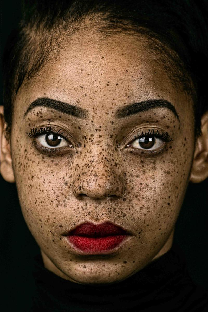 A portrait of a woman with freckles.