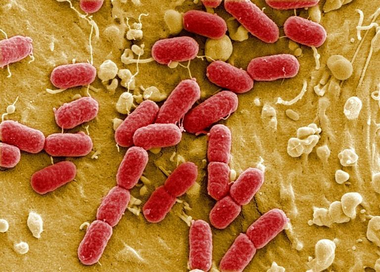 Antimicrobial resistance has been labelled by the UN as a serious threat predicted to cause 10mn death annually by 2050