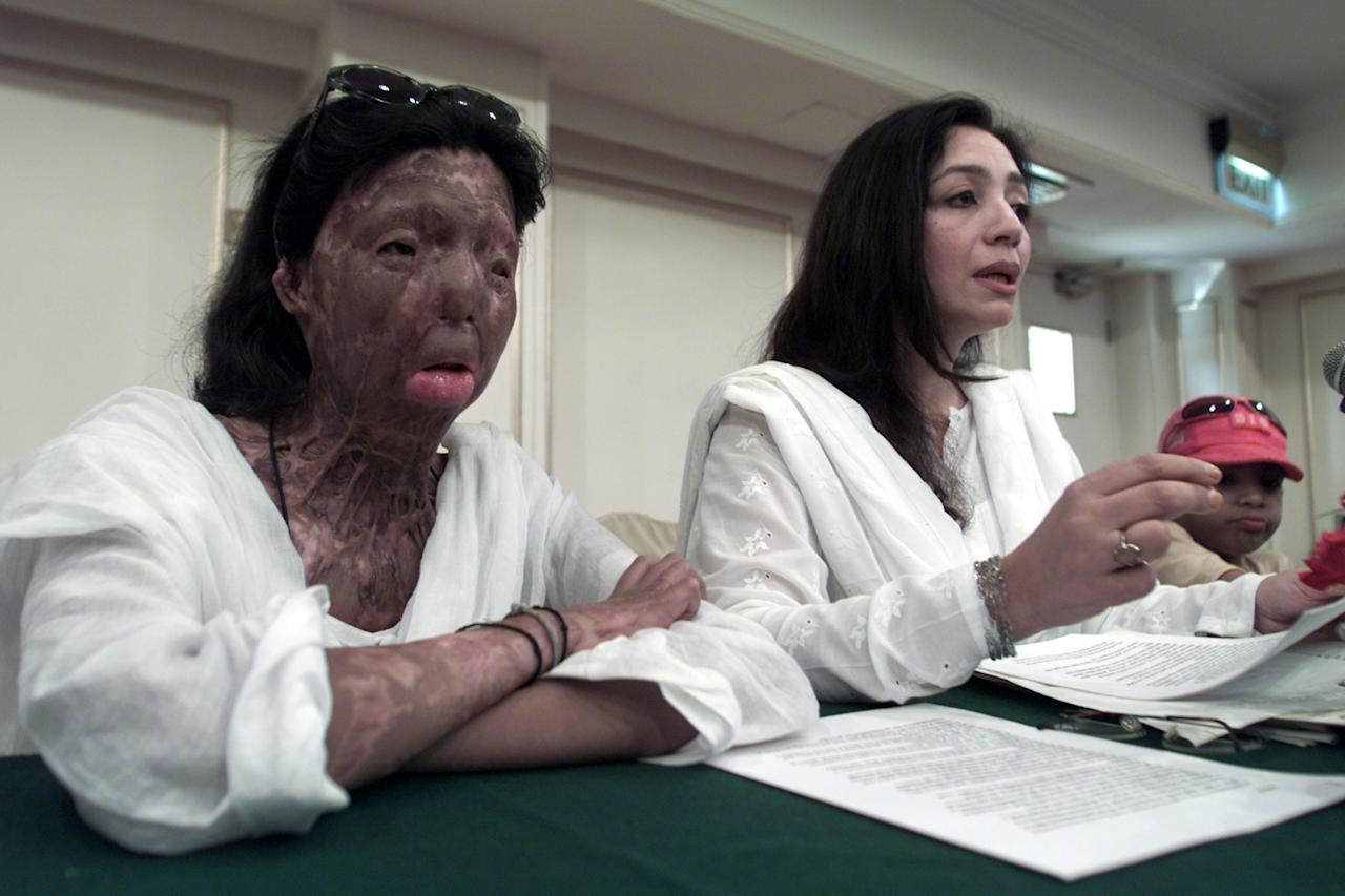 Fakhra (L) speaks to reporters with Tehmina Durrani (R) author of the two books and a former wife of a powerful Pakistani politician in a news conference June 14, 2001. Durrani said that the military-led government on Thursday should urgently issue travel doucument to the 21-years old Fakhra, a women whose entire upper body has been burnt by acid allegedly thrown by her husband. Reuters