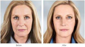Non-Surgical Facial Rejuvenation Making a Real Splash This Summer