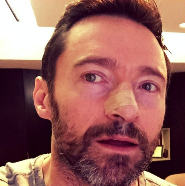 Just hours earlier he'd had 80 stitches in his nose after having a cancerous mole removed and was told not to sing, pictured here following the surgery in 2016. Source: Instagram/HughJackman