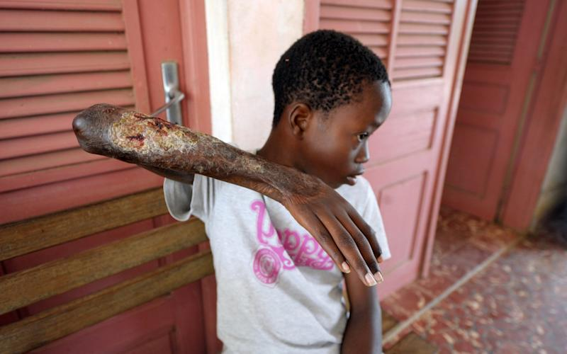 A young boy shows his arm skin damaged by Buruli ulcer in Ivory Coast - AFP