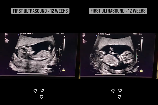Ultrasound up when do on twins show Twin Ultrasound: