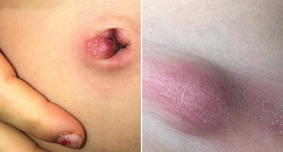 Two photos of a five-year-old girl's stomach. One shows a small red bump on her belly button where a tick was removed and another shows a swelling.