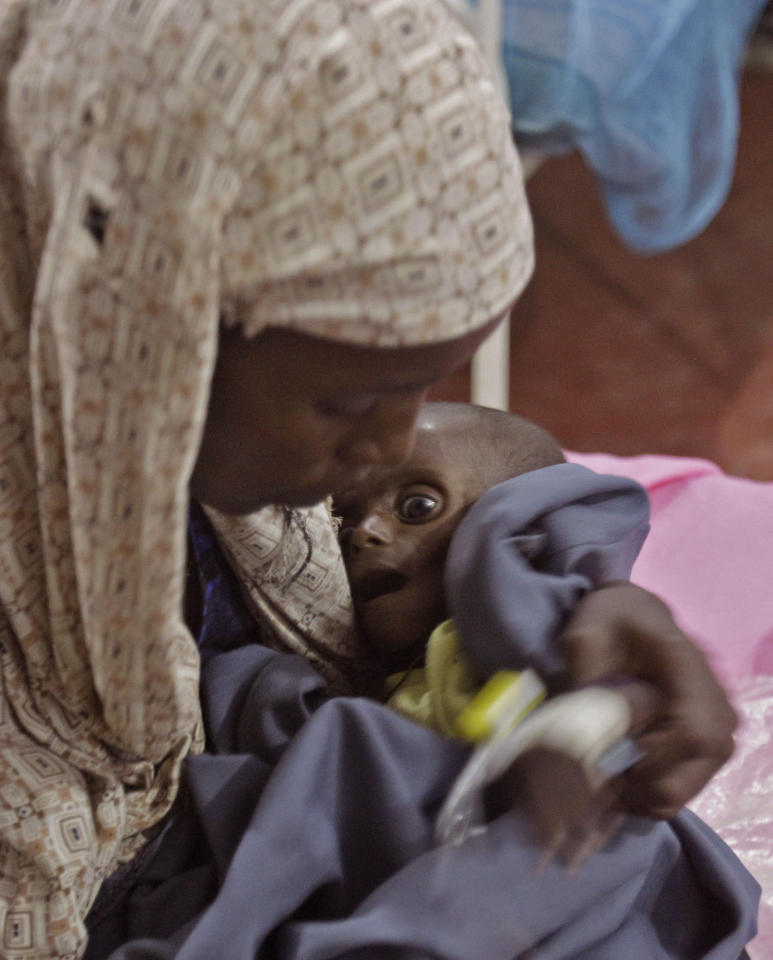 Asiah Dagane holds Mihag Gedi Farah, her 7-month-old child with a weight of 7 pounds, 8 ounces (3.4 kilograms), at a field hospital of the International Rescue Committee, IRC, in the town of Dadaab, Kenya, Tuesday, July 26, 2011. Mihag Gedi Farah is 7 months old, and weighs as little as a newborn with the weathered skin of an old man. His mother managed to get him to a field hospital in a Kenyan refugee camp after a weeklong odyssey, but the baby's anguished eyes, hollow cheeks and fragile limbs show just how severe Somalia's famine is becoming. (AP Photo/Schalk van Zuydam)