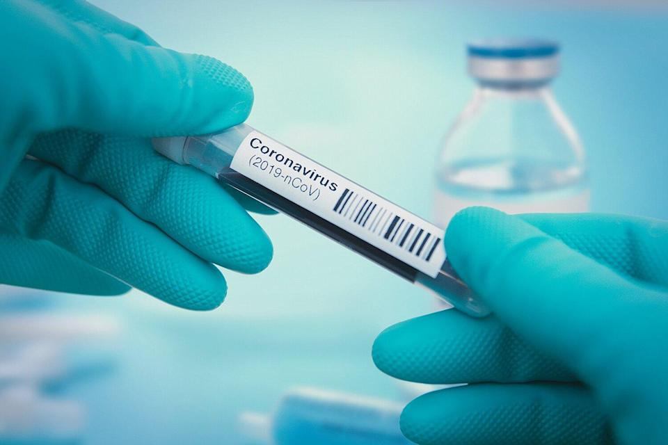 FDA Approves First Rapid 'Point-Of-Care' Coronavirus Test That Can Give Results in 45 Minutes