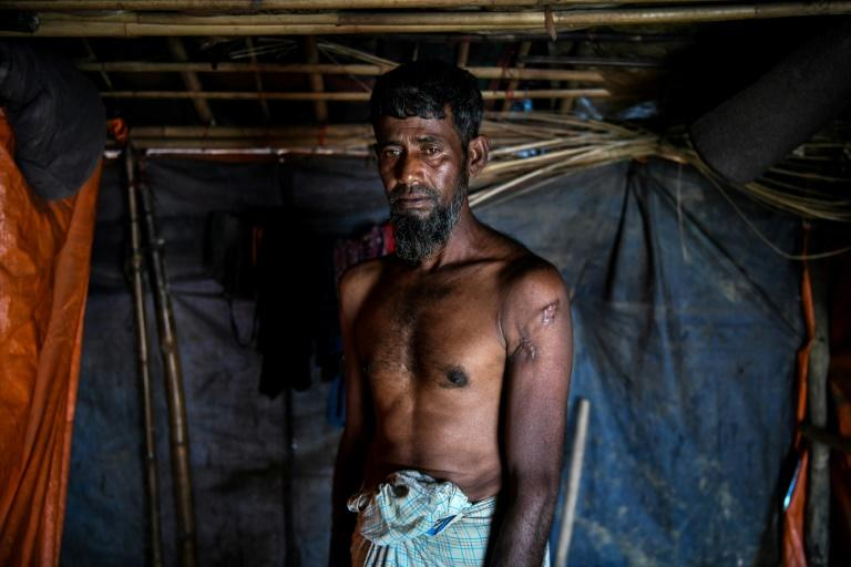 Kabir Ahmed, 60, has been left with an arrow-shaped scar on his shoulder after a bullet tore his flesh