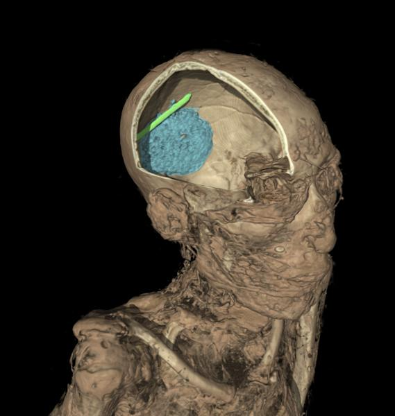 This undated handout image provided by The British Museum on Wednesday, April 9, 2014 shows the computer generated CT scan of the skull of the mummy of an adult man, name unknown. The scan shows the remains of the brain, coloured in blue, and evidence of a tool that was left in the skull as a mistake during the mummification process, in green. Scientists at the museum have used CT scans and sophisticated imaging software to go beneath the bandages, revealing skin, bones, preserved internal organs — and in one case a brain-scooping rod left inside a skull by embalmers. The findings go on display next month in an exhibition that sets eight of the museum's mummies alongside detailed three-dimensional images of their insides and 3-D printed replicas of some of the items buried with them. (AP Photo/The British Museum) NO ARCHIVE