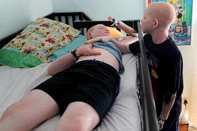 <p>Mwigulu Magesaa 14, (R) wakes up Emmanuel Rutema, 15, both Tanzanians with albinism who had body parts chopped off in witchcraft-driven attacks, at the Global Medical Relief Fund house in the Staten Island borough of New York City, June 2, 2017. ((Photo: Carlo Allegri/Reuters) </p>