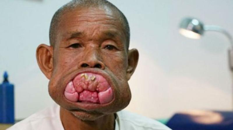 Eng Kheng had never received dental treatment while living in a remote village in the country's Kampong Cham province for the past 30 years. Source: ABC