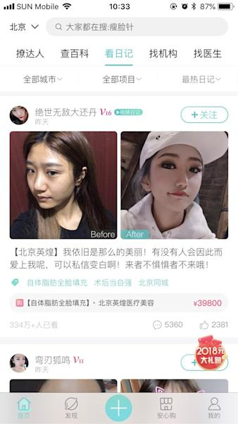 This social network is where China's plastic surgery fans share their nose jobs