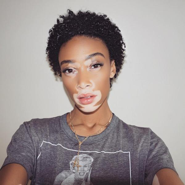 Winnie Harlow Chopped Off Her Long Hair