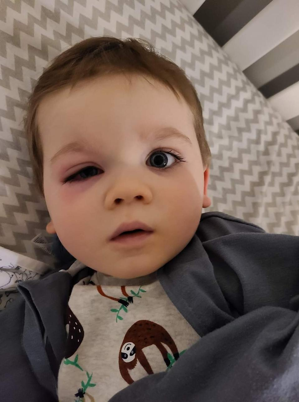 The writer's son, with the eye infection that sent him to the hospital. (Photo courtesy Eden Strong)