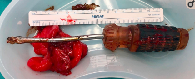 Screwdriver removed from inside man after he inserted it up his anus and left it for a week.