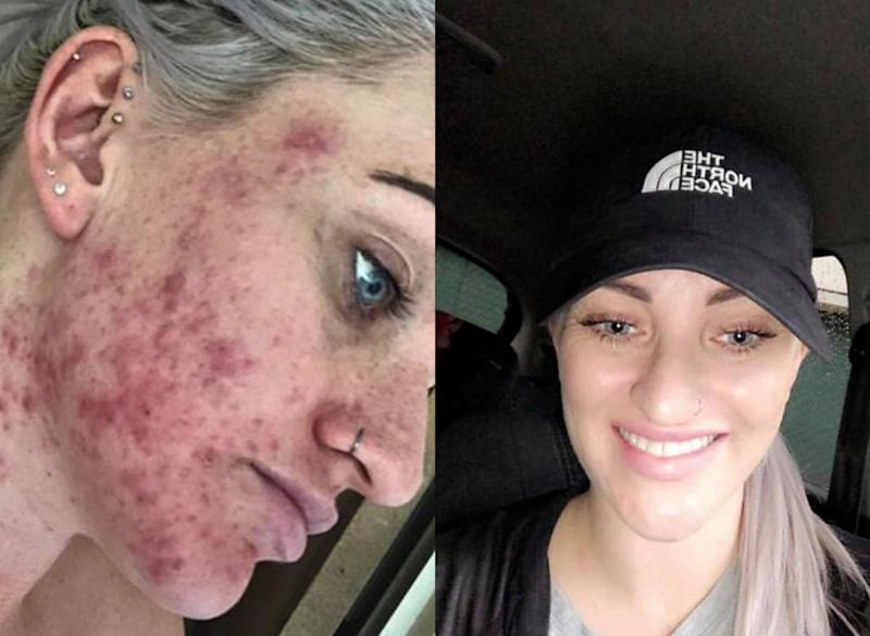 Acne transformation from Carbon Theory cleaning bar