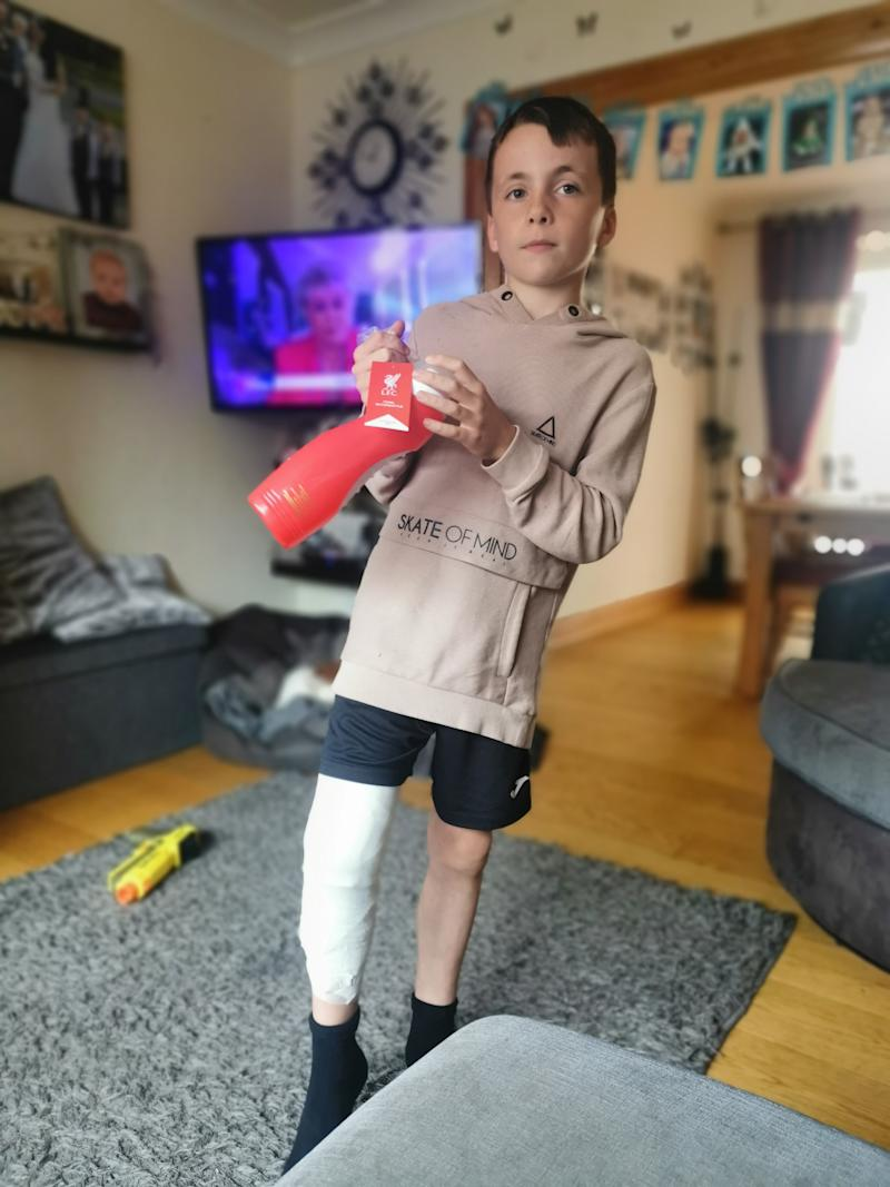 Jayden Bird at home after being treated for his burns. See SWNS story SWTPhogweed. A mum has issued a warning after her son received these horrific third degree burns from HOGWEED - dubbed Britain's most dangerous plant. Jayden Bird, nine, rubbed his leg against the toxic weed which is thriving thanks to lockdown. He was playing with his siblings while on a camping holiday with his family when he ran past a patch of hogweed near some trees on the campsite. Within minutes his right leg was covered in red marks - and sixteen hours later they erupted into puss-filled blisters leaving him in agony.