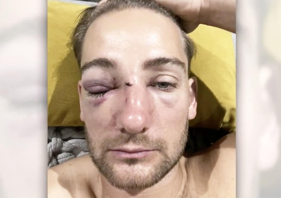 Chevy Anderson, pictured here after suffering a broken nose and facial fractures.