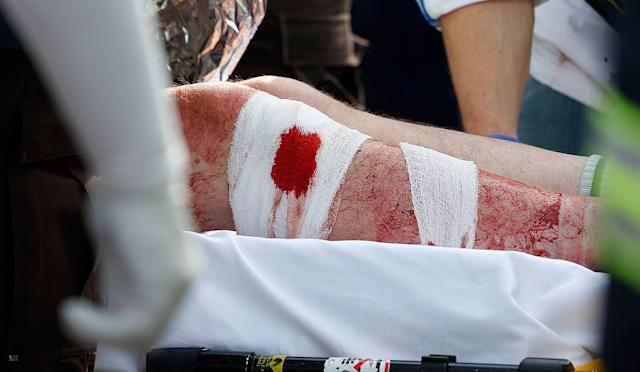BOSTON, MA - APRIL 15: The bandaged leg of a man hangs outside an ambulance outside a medical tent located ear the finish of the 117th Boston Marathon after two bombs exploded on the marathon route on April 15, 2013 in Boston, Massachusetts. Two people are confirmed dead and at least 23 injured after two explosions went off near the finish line to the marathon. (Photo by Jim Rogash/Getty Images)