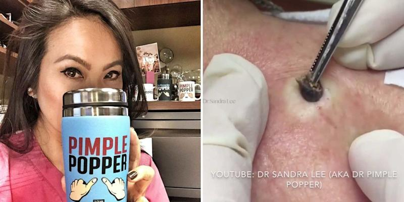 Dr Pimple Popper Is Casting People For Her Show
