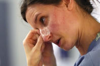 FILE - In this Jan. 26, 2021, file photo, with indentations from a N-95 mask marking her face, registered nurse Lilyrose Fox peels protective tape from her nose after working in patients rooms in the COVID acute care unit at UW Medical Center-Montlake, in Seattle. The U.S. death toll from COVID-19 has almost topped 500,000 — a number so staggering that a top health researchers says it is hard to imagine an American who hasn't lost a relative or doesn't know someone who died. (AP Photo/Elaine Thompson, File)