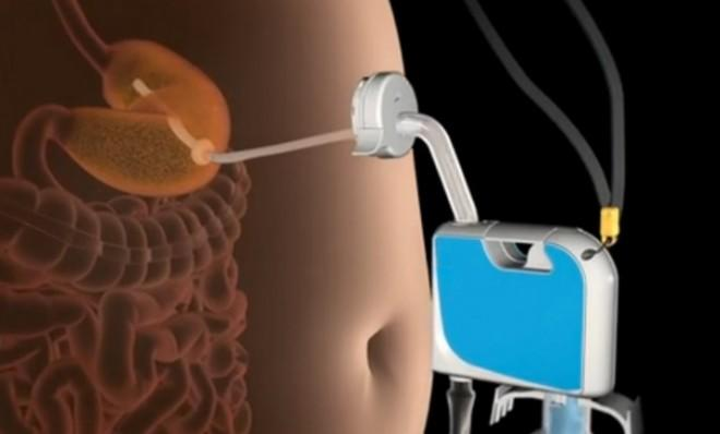 The AspireAssist empties 30 percent of the contents of a person's stomach into the toilet.