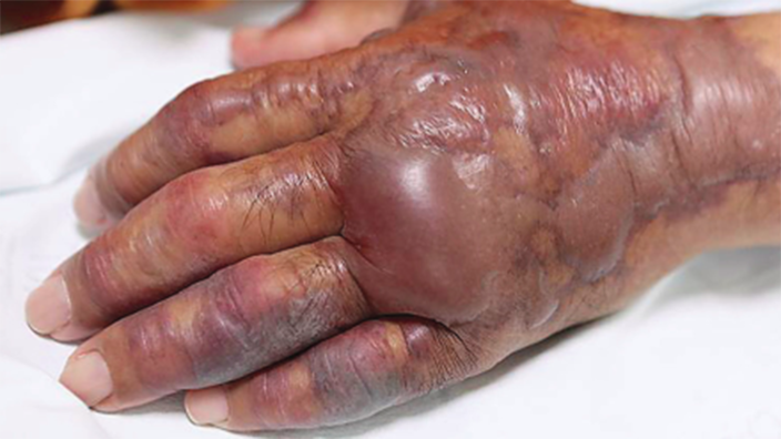 The man's left arm was amputated after his blisters worsened and spread up his arm. Source: New England Journal of Medicine.