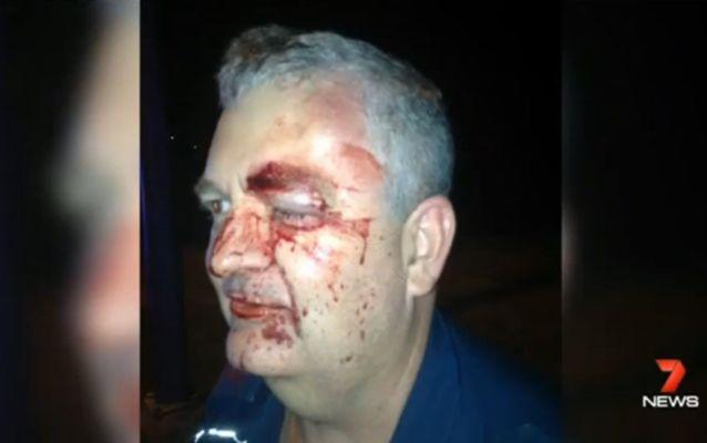 Paramedic Gary Bullock was assaulted while on duty on teh Gold Coast. Source: 7 News.