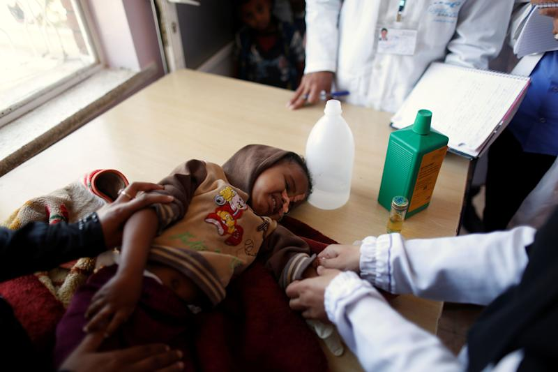 Malnutrition is increasingly common in Yemen, particularly among children.