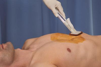 BD PurPrep™ joins BD ChloraPrep™ patient preoperative skin preparation as the only fully sterile skin preparations available on the market that use a single-use applicator specifically designed to prevent cross-contamination and promote aseptic non-touch technique. The BD PurPrep™ patient preoperative skin preparation is an effective skin preparation alternative when the use of a chlorhexidine gluconate (CHG/IPA) is contraindicated or the patient is sensitive to CHG.
